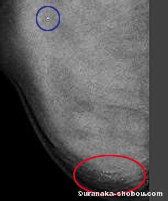 【乳がんでした】乳がんの疑いでMRIとマンモトーム生検を受診